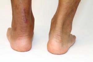 アキレス腱縫合手術痕